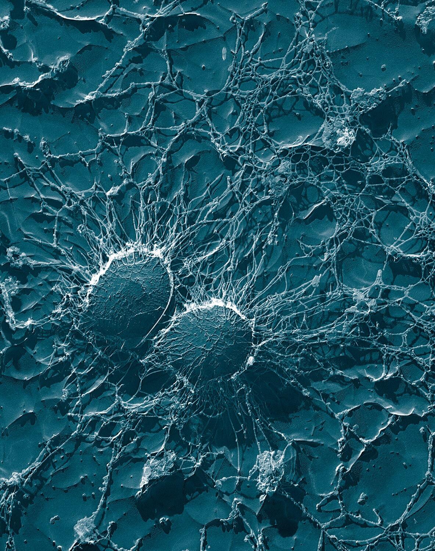 auf Bakterien MRGN Vormarsch brennpunkt hochresistente dem T1FKJcl3